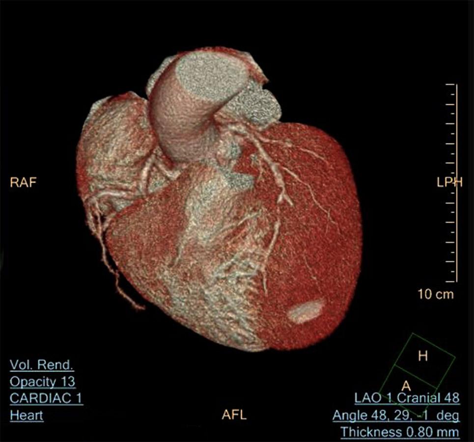 angiograma-corazon-en-un-día