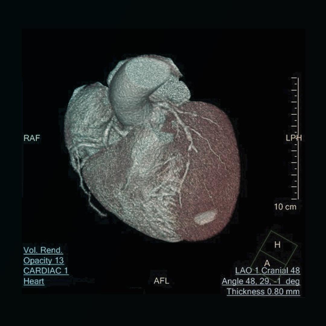 escáner de corazón